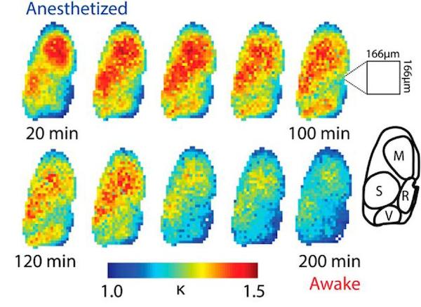 Waking Brain