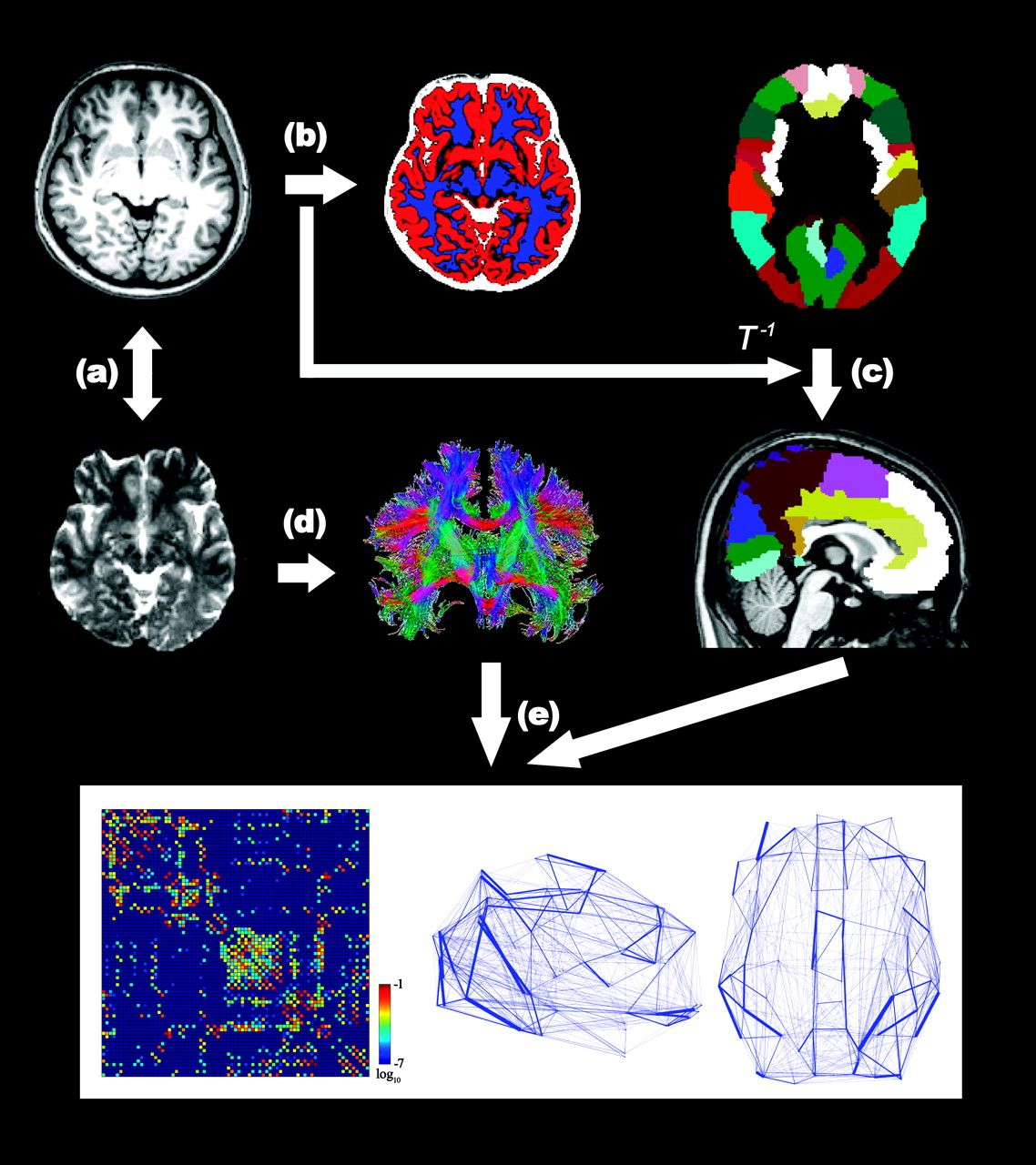 The construction of a cortical anatomical network by diffusion tensor imaging.